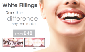 Ask about white fillings